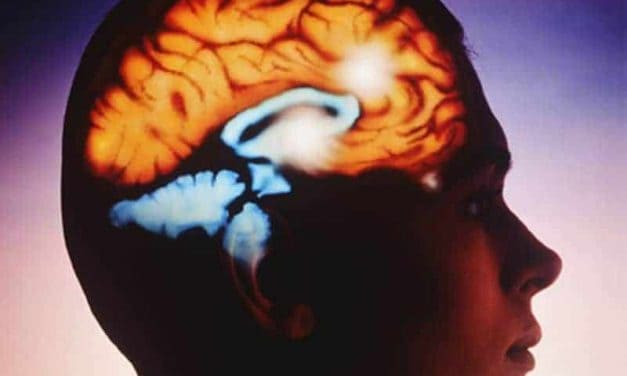 ECT Effective for Treatment-Resistant Depression