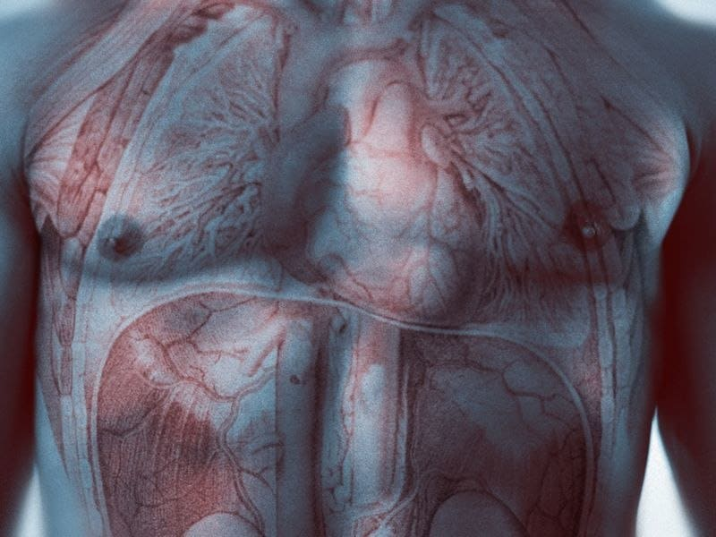 Screen Does Not Cut Abdominal Aortic Aneurysm Mortality in Men