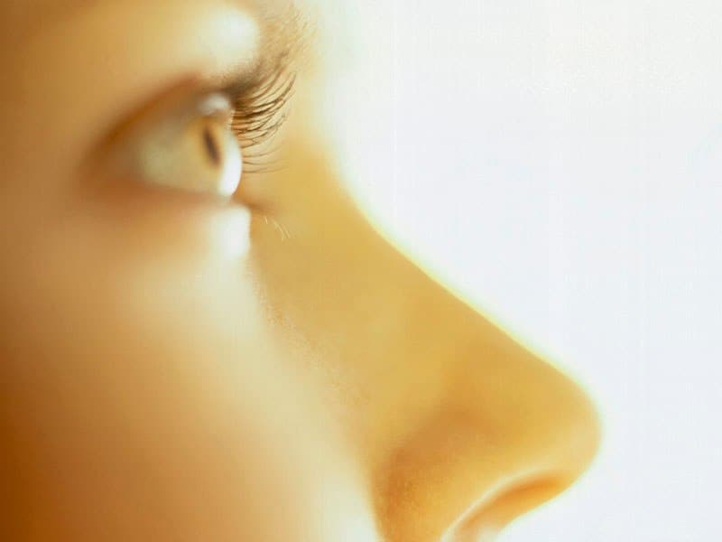 Dorsal Reduction Adds to Social Perception of Rhinoplasty