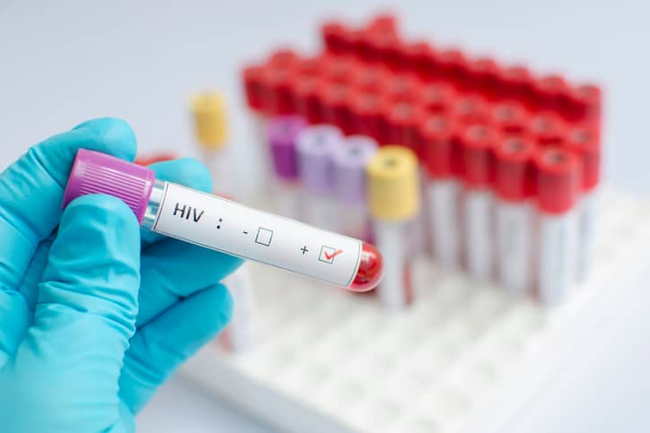 Lab Testing for PrEP Users