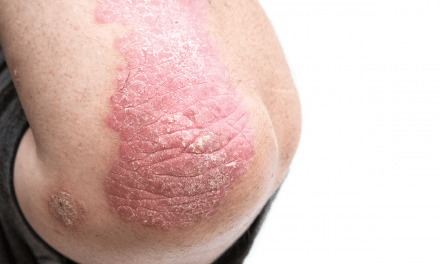 New Recommendations for Pediatric Psoriasis Care