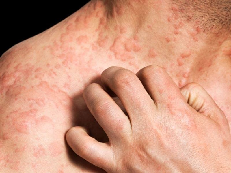 Prevalence of Atopic Dermatitis 7.3 Percent in U.S. Adults
