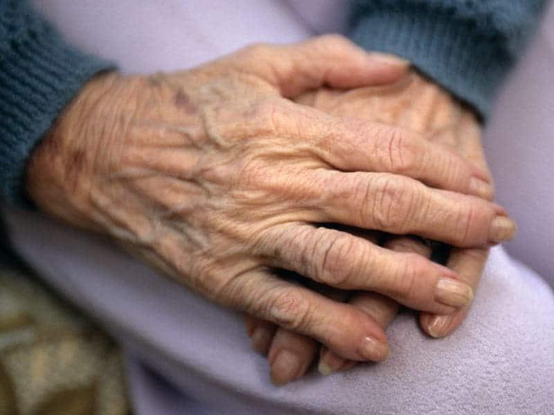 Elderly-Onset Rheumatoid Arthritis Ups Bone Erosion Risk
