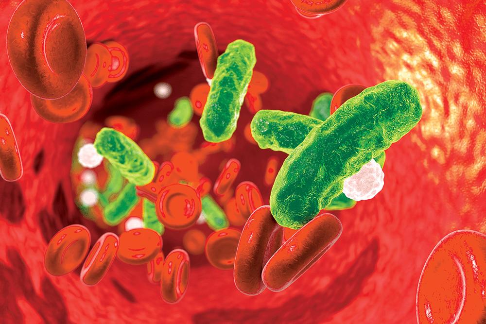 IV Vitamin C, Hydrocortisone, & Thiamine for Sepsis