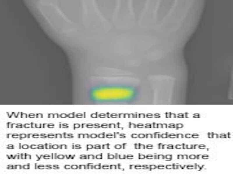 Deep Neural Network Improves Detection of Wrist Fractures