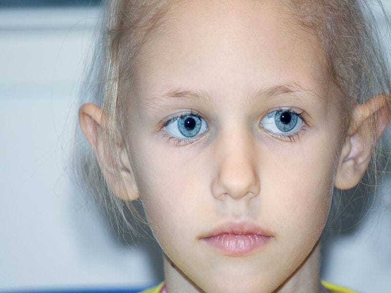 Nonchromosomal Birth Defects May Up Childhood Cancer Risk