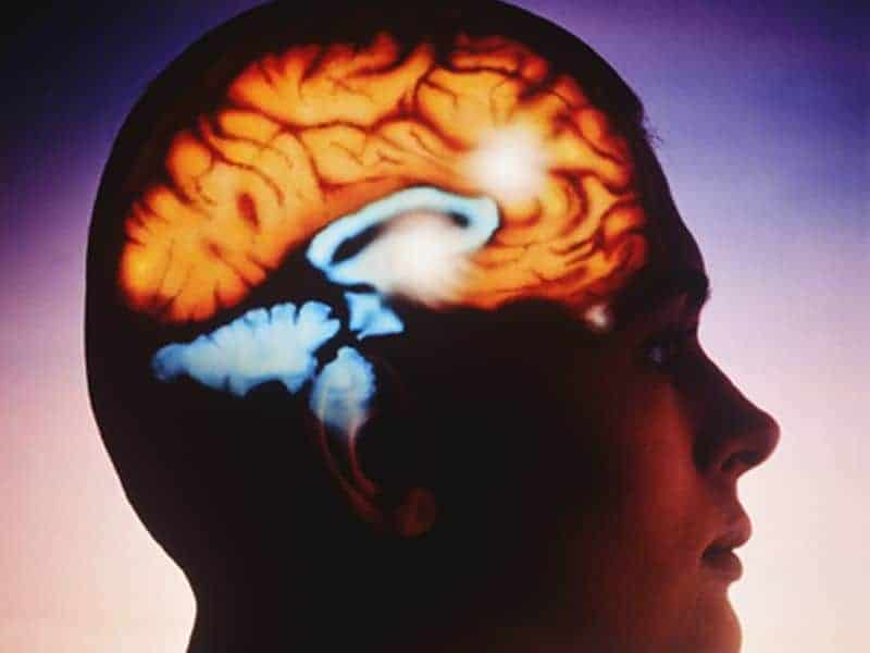 Predictors of Recovery After Brain Injury Identified