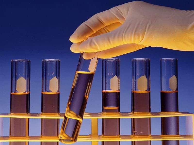 Biomarker Test Predicts Mild, Serious IBD in Newly Diagnosed