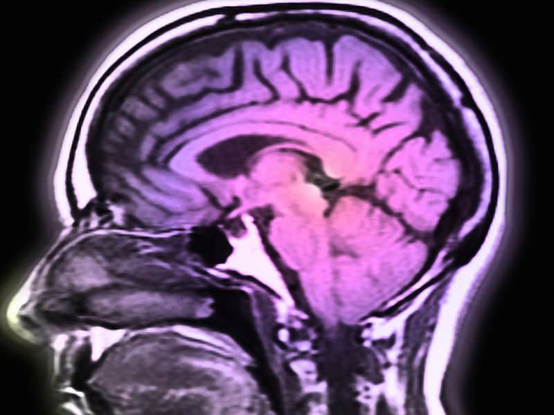 Early Adult Income Volatility Tied to Later Brain Health