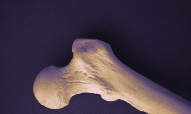 More Than 1 in 4 Middle-Aged Men, Women Have Low Bone Mineral Density