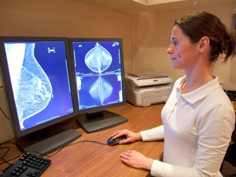 Mammo-Based Deep Learning Model Assesses Breast Cancer Risk
