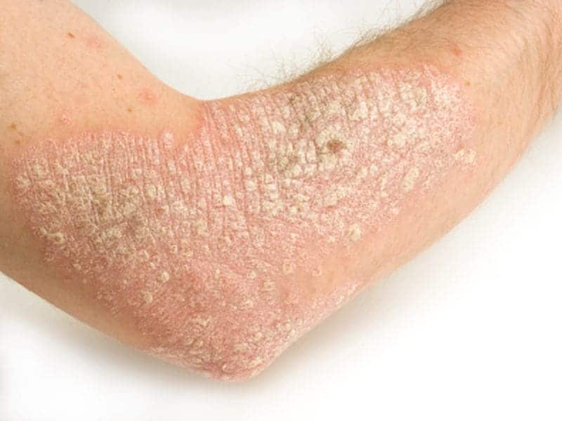 Infection Risk Lower With Certain Psoriasis Treatments