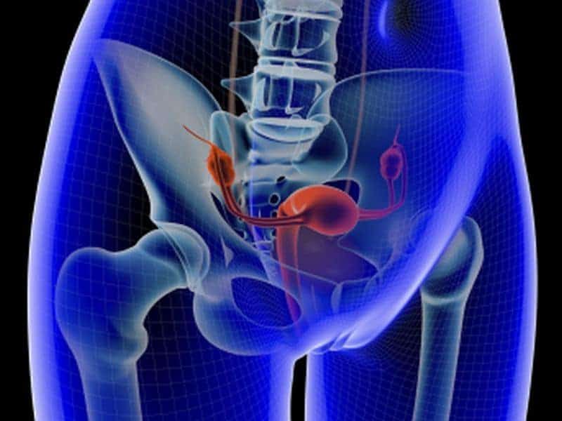 Cervical Adenocarcinoma Rates Increased in Some Populations