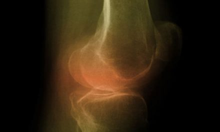 Experimental Growth Factor May Aid Knee Osteoarthritis