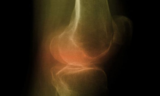 Risk Factors ID'd for Worse QOL From Knee Osteoarthritis
