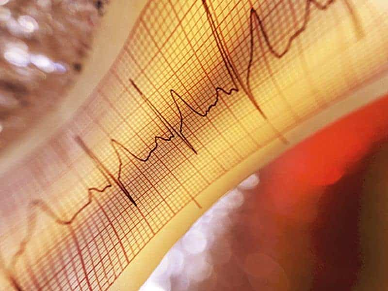 Risk Tool Can Predict Heart Failure in Patients With Diabetes