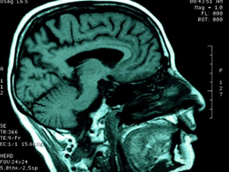Infections Tied to Subsequent Risk for Acute Ischemic Stroke