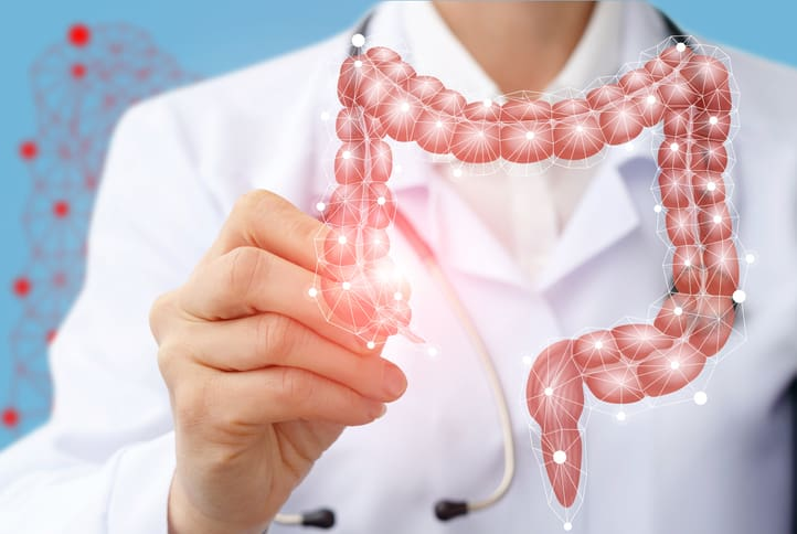 CME/CE: Exploring the Link Between Psoriasis & Colorectal Cancer