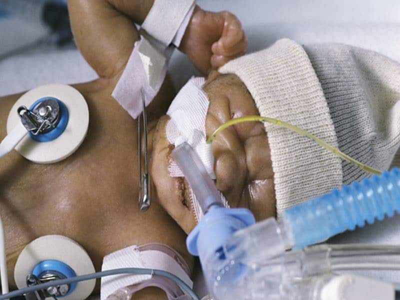 Outcomes Poorer for Extreme Preemies Transferred After Birth