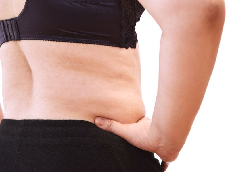 Overweight, Obese Patients Rate Tummy Tuck Results Highly