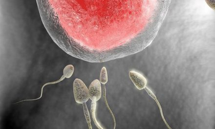 Prostate Cancer Risk Higher in Men Receiving Fertility Treatment