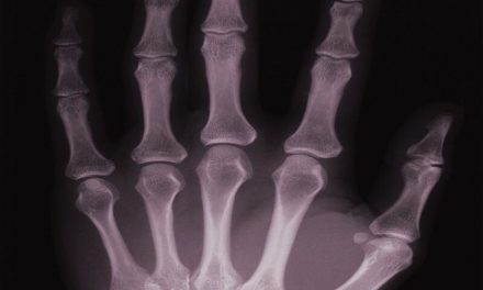 Serum IL-35 Levels Tied to Bone Loss With Rheumatoid Arthritis