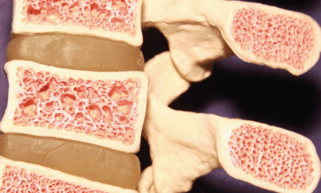 Bone Marrow & Muscle Fat Infiltration in Postmenopausal Women With Osteoporosis