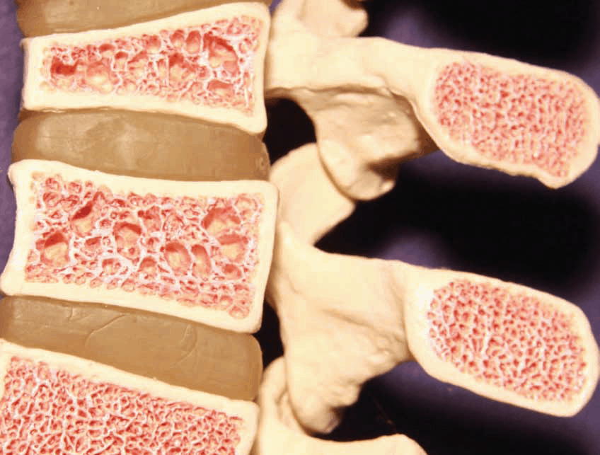 Osteoporosis Treatments and Overall Mortality
