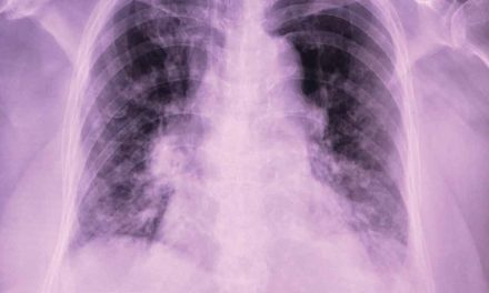 RA Activity & Incident RA–Associated Interstitial Lung Disease