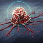 ASCO 2020: Updated Results from the phase III CASPIAN study.