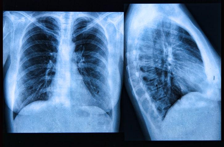 Thoracic cancers versus COVID-19