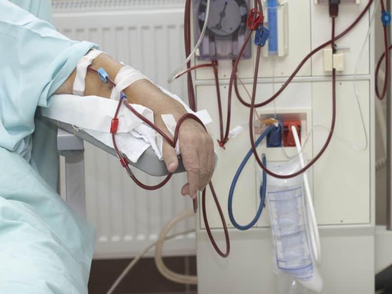 COVID-19 Explored in Kidney Recipients, Hemodialysis Patients