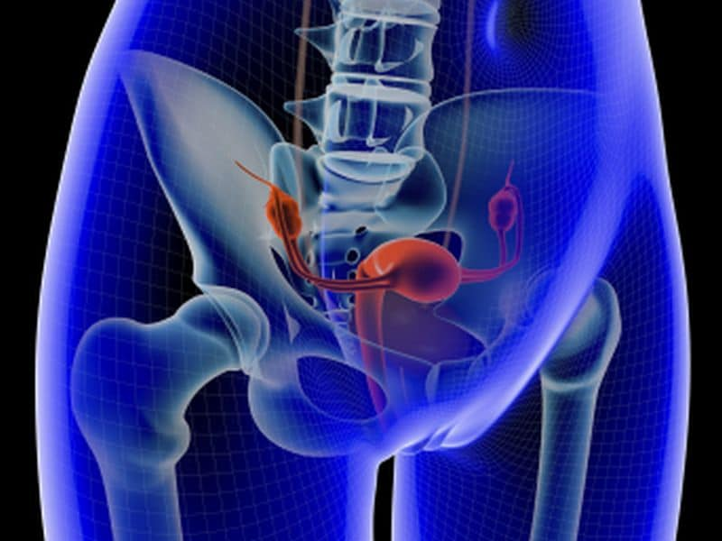 Universal Screening for Lynch Syndrome in Patients With Uterine Cancer