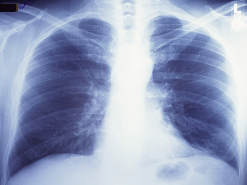 Black-White Disparity in Lung Cancer Incidence Eliminated