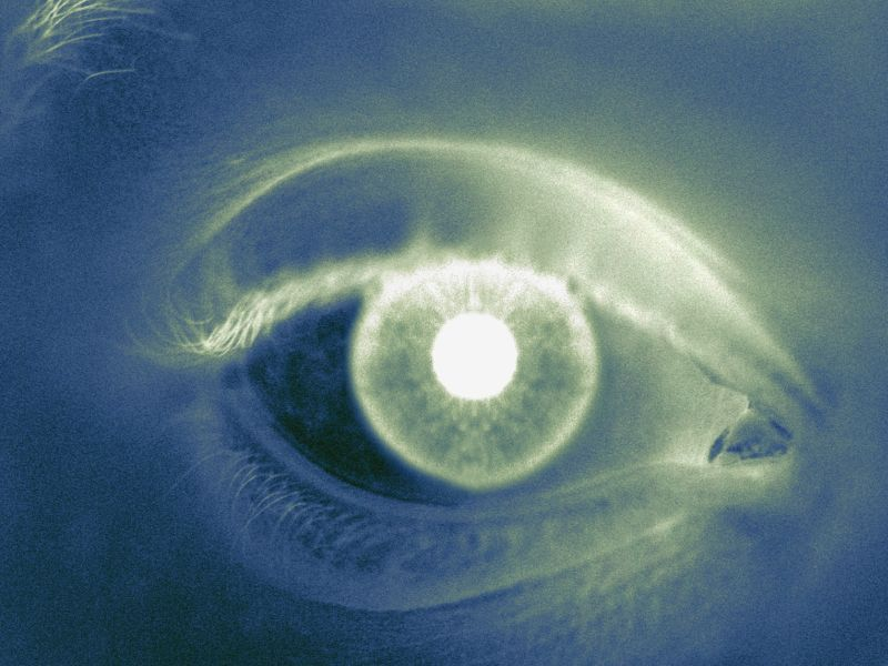 Retinal Changes Linked to Cognitive Function in T1DM Patients