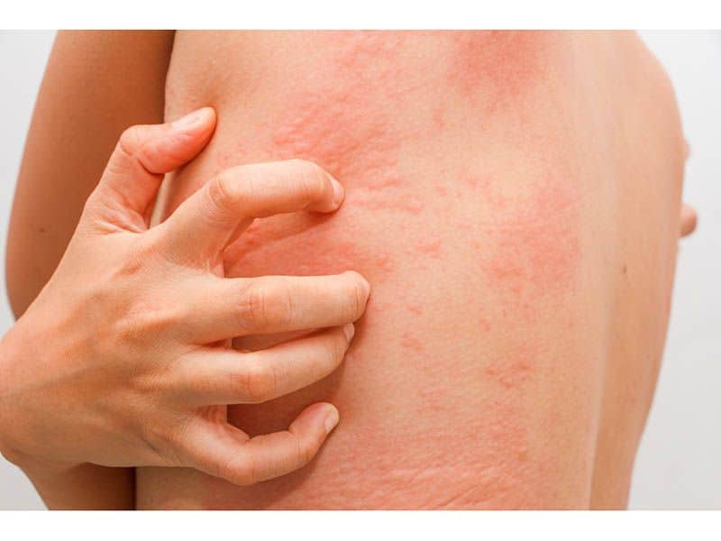 Skin Rashes Occur in Considerable Number of SARS-CoV-2 Cases