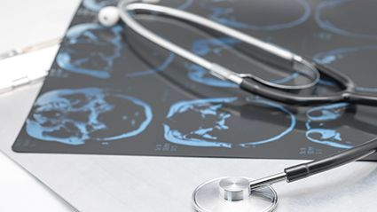 CV Risk in Early Adulthood Tied to Later Cognitive Decline