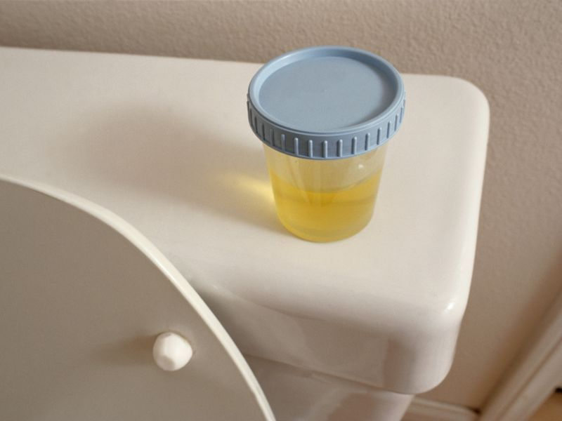 Threshold ID'd for Urine Test to Rule Out Prostate Cancer