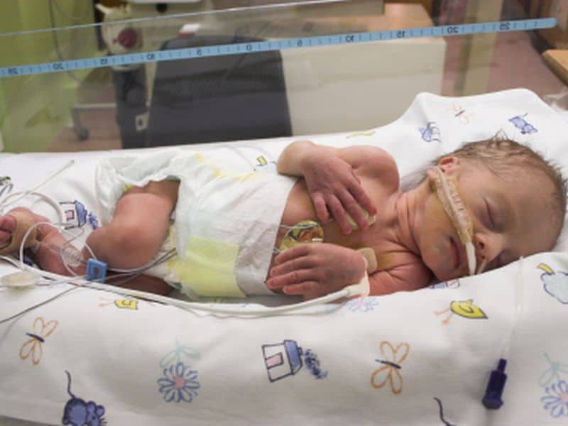Preterm Birth May Up Risk for Later Mental Health Issues