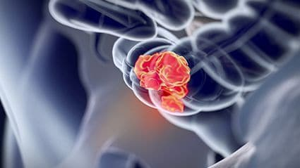 ACG Updates Guidelines for Colorectal Cancer Screening