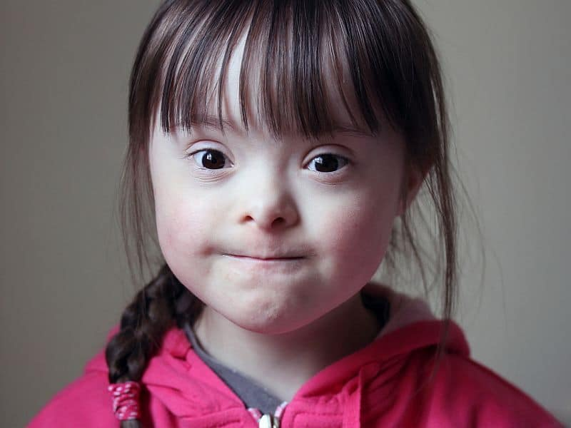 Children With Down Syndrome at Higher Risk for Leukemia