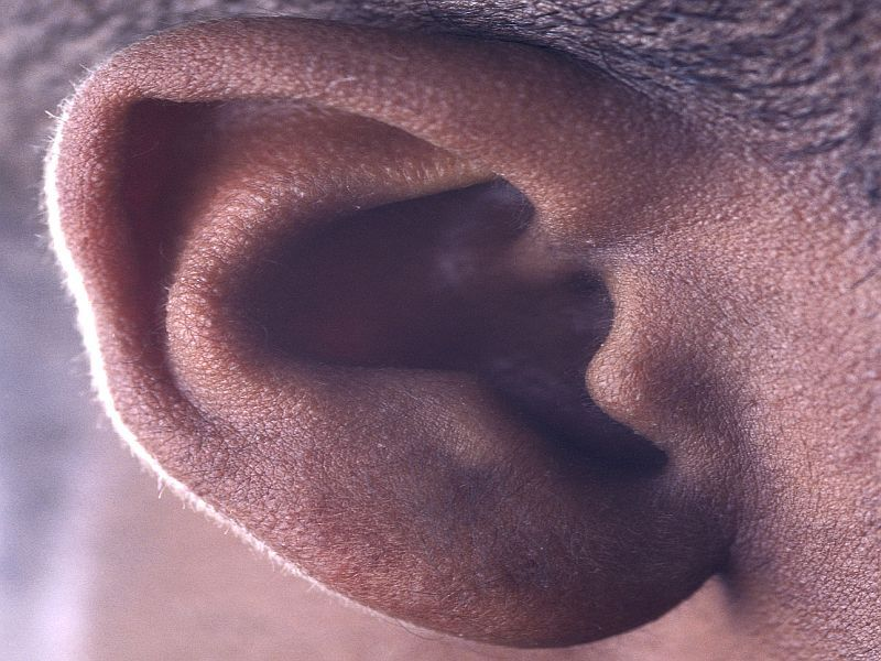Hearing Loss Tied to Less Physical Activity in Older Adults