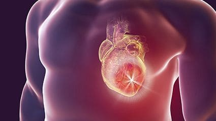 Impaired First-Phase Ejection Fraction Tied to COVID-19 Mortality