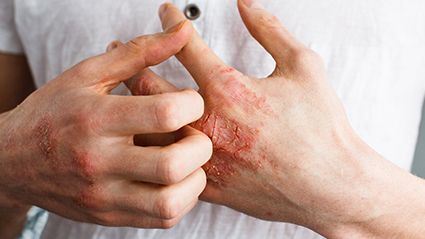 Baricitinib Shows Long-Term Efficacy for Atopic Dermatitis