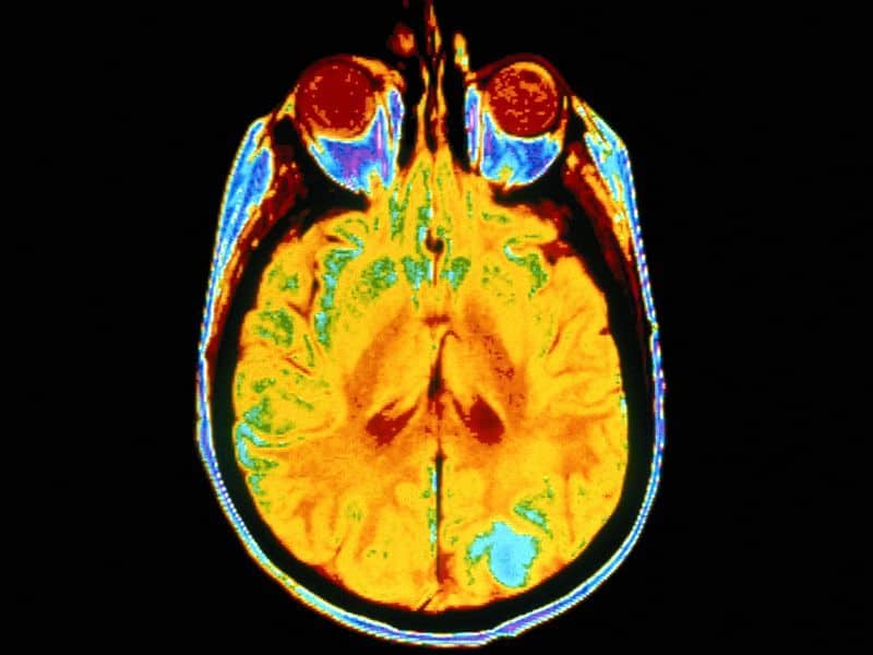 AI Model Detects Normal, Abnormal Findings on Brain MRI