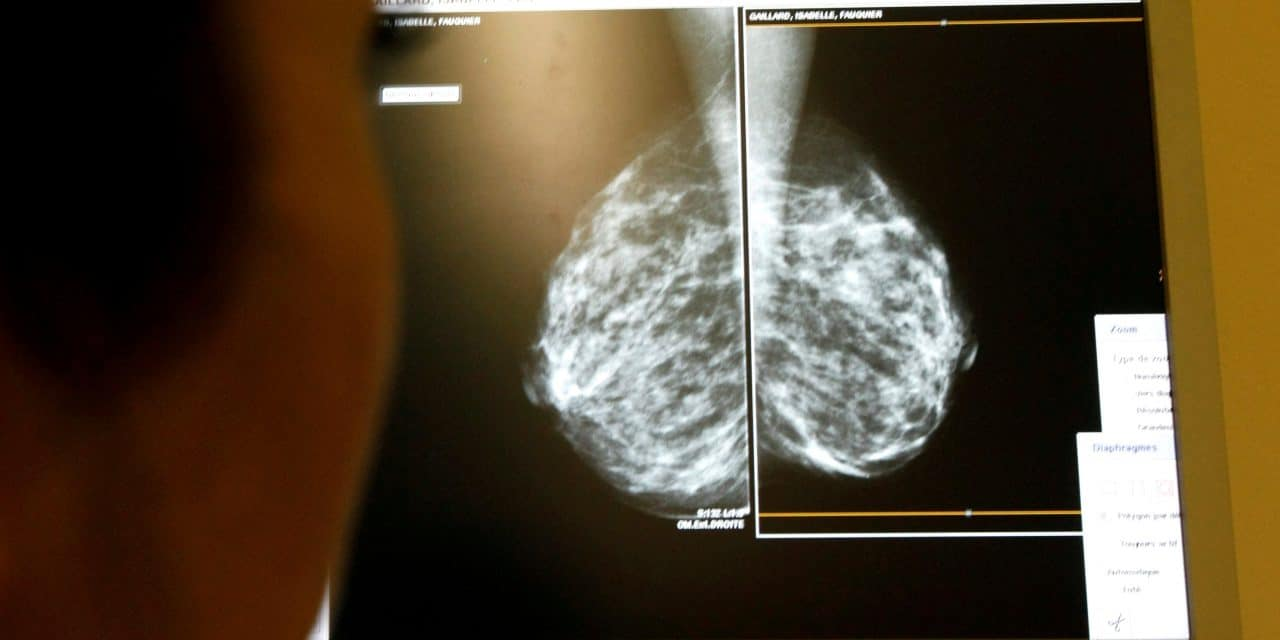 Many women with early-stage breast cancer can skip chemotherapy: study