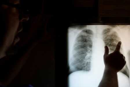 Coal lobby's push for lower black lung tax clashed with U.S. studies