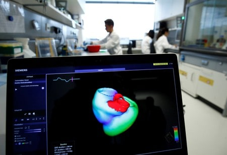 Tech breakthrough offers early warning system for heart attacks