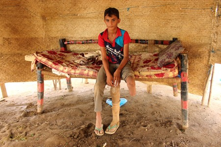 Air strikes maim, scar Yemen's children