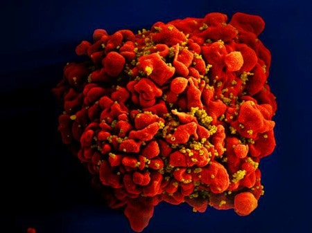AIDS drugs prevent sexual transmission of HIV in gay men